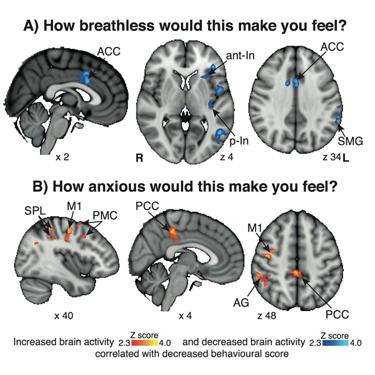 Treating breathlessness via the brain